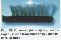 выпадение щетинок, их разволокнение, потеря формы, кустистости, укорочение щетинок