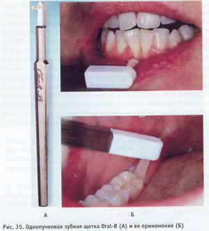 щетки с атипичной формой головки или так называемые специальные зубные щетки