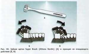 """Зубная щетка Super Brush (Athena Nordic) имеет комбинированную """"тройную"""" головку"""